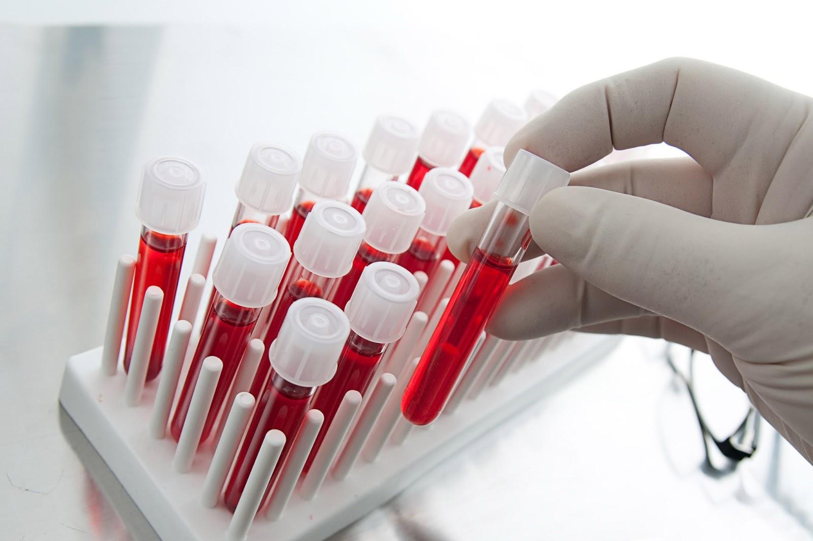 Биохимический анализ крови - 40 грн./1показатель
